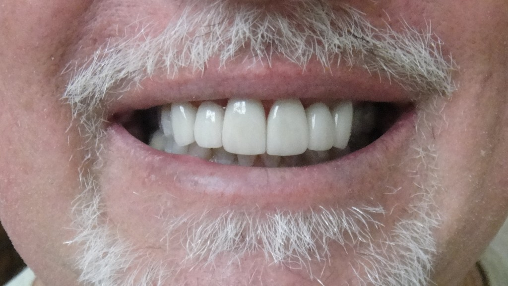 MdV After 6 IPS e.max crowns  on upper anterior teeth